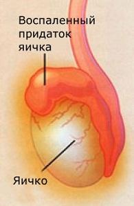 абсцесс придатка яичка
