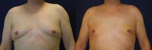 Факторы риска развития гинекомастии