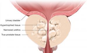 Гиперплазия предстательной железы ДГПЖ
