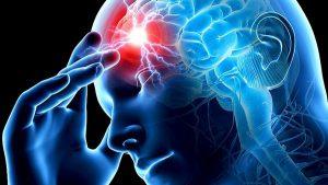 Есть два типа инсультов: ишемический и геморрагический